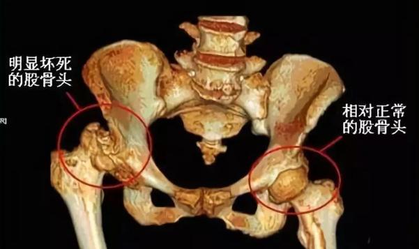 小分子肽真的能治疗股骨头坏死吗.png