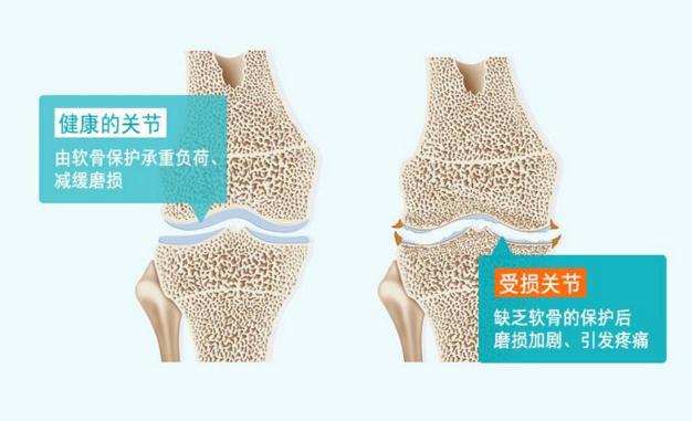 胶原蛋白肽在软骨修复中的应用数据